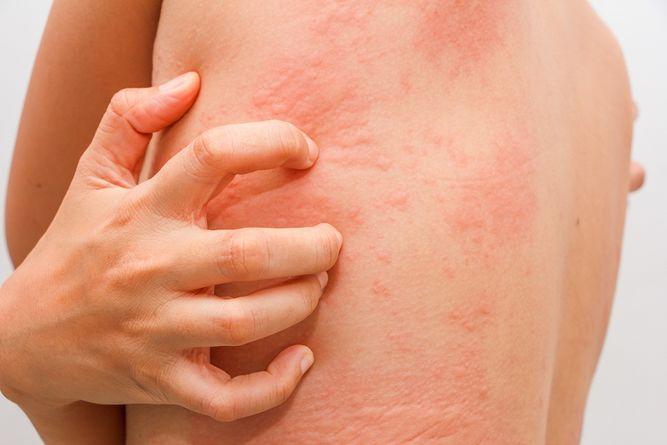 las alergias se curan